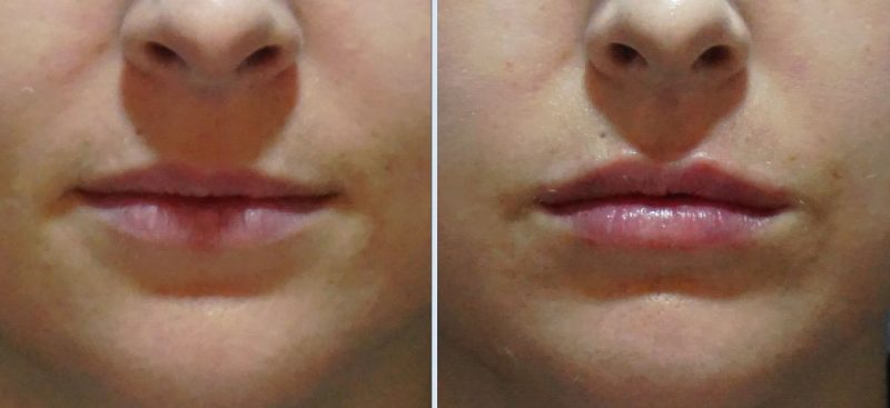 Fill'er Up: Lip Fillers at MH Clinic, Seoul with Eunogo