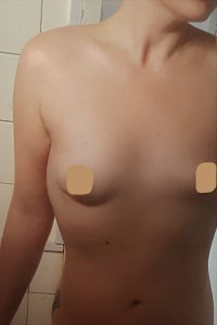 Boob Job in Seoul Korea Before and After Breast Augmentation Plastic Surgery Before and After